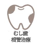 歯がしみる・痛い>むし歯・根管治療